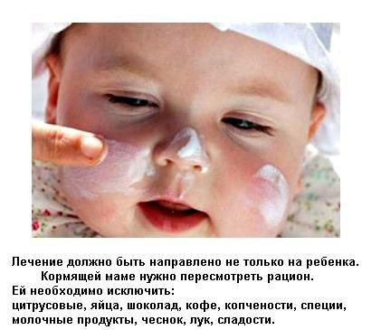 Как лечить диатез у ребенка народными методами