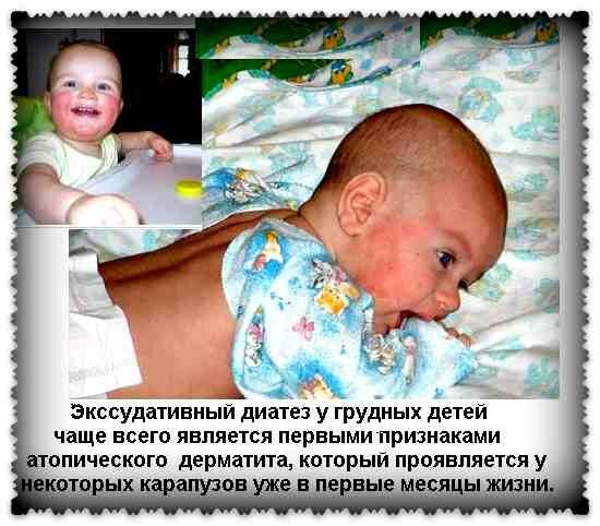 лечение диатеза у новорожденных