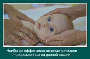 кривошея новорожденных