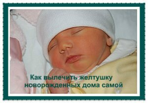 желтушка грудничков:лечение